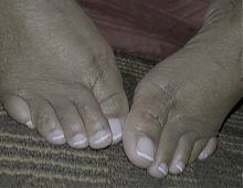 Fat ebony toes with french pedi